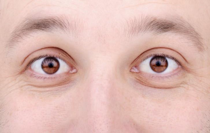 göz kapağı sarkması